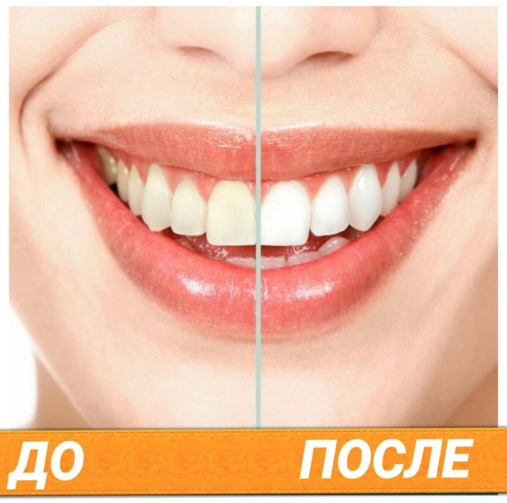 как правильно отбеливать зубы дома