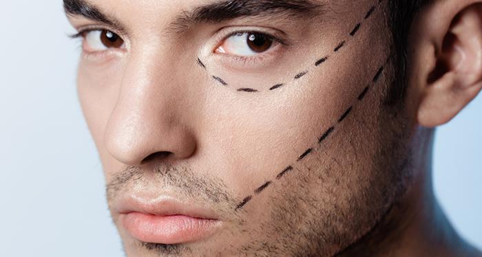 Брутально-идеально: любимые операции мужчин